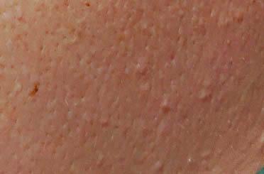 Рис. Кожа со следами аллергии на солнце