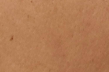Рис. Участок кожи вылеченный Цероксином от покраснения и раздражения после пребывания на солнце